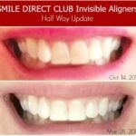 My Invisible Aligner Update with SmileDirectClub