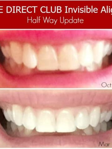 comparison of smile after using invisible aligners