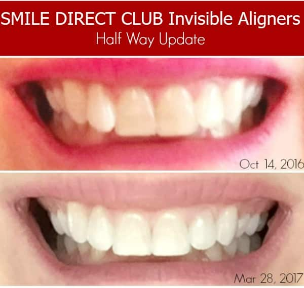 My Invisible Aligner Update with SmileDirectClub - To Simply